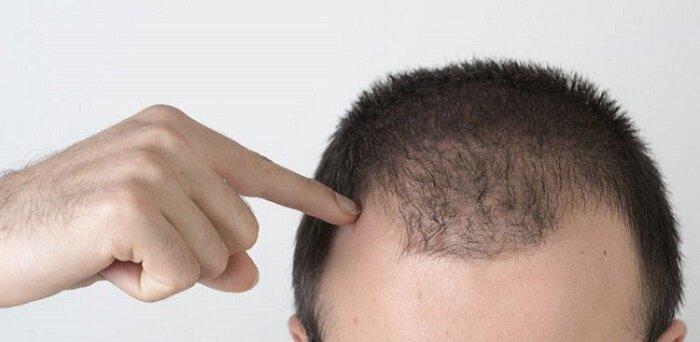 درباره بیوتین؛ ویتامینی موثر در رشد موی مردان